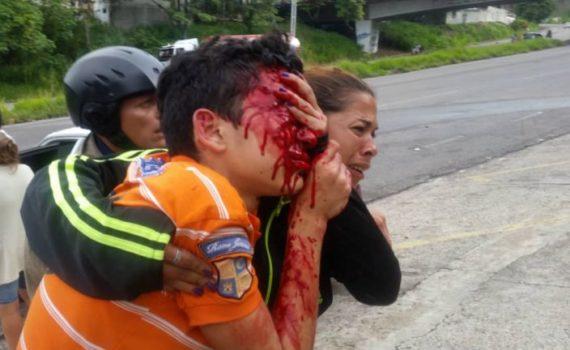 Discapacidad por armas de fuego | Politáchira deja ciego a Rufo Chacón.